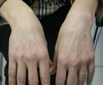 鹿児島三井中央クリニックのシミ治療(シミ取り)・肝斑・毛穴治療の症例写真[アフター]