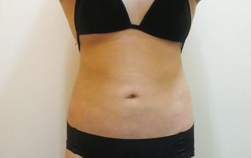 大阪 雅 -miyabi- 美容外科の脂肪吸引の症例写真[アフター]