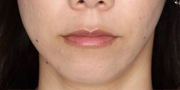 SELECT CLINIC(セレクトクリニック)の口元・唇の整形の症例写真[ビフォー]