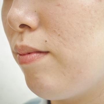 タウン形成外科クリニックの顔の整形(輪郭・顎の整形)の症例写真[アフター]