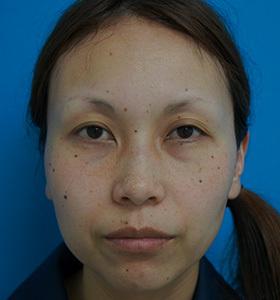 ガーデンクリニックの目元整形・クマ治療の症例写真[ビフォー]