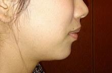 あごボトックスの症例写真[アフター]