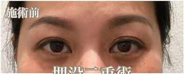 西宮SHUHEI美容クリニックの目・二重の整形の症例写真[ビフォー]