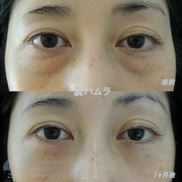 こうべ花時計クリニックの目元整形・クマ治療の症例写真[ビフォー]