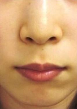 広島プルミエクリニックの鼻の整形の症例写真[ビフォー]