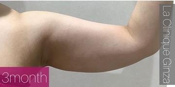 La Clinique Ginza(ラ クリニック銀座)の痩身、メディカルダイエットの症例写真[アフター]