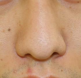 千葉中央美容形成クリニックの鼻の整形の症例写真[ビフォー]