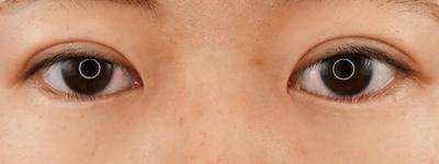 グランドループ法(二重埋没法)術後1か月 女性 20代の症例写真[アフター]