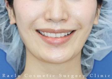 新宿ラクル美容外科クリニックの口もと、唇の整形の症例写真[アフター]
