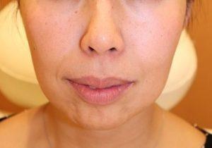 フォーシーズンズ美容皮膚科/美容外科の顔の整形(輪郭・顎の整形)の症例写真[ビフォー]