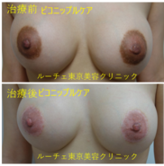 ルーチェ東京美容クリニック池袋院の症例写真