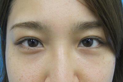 傷のできない目の下のクマ治療の症例写真[アフター]