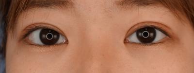 グランドループ法(二重埋没法)術後1週間 女性 10代の症例写真[アフター]