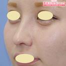 鼻プロテーゼ+鼻尖形成+鼻中隔延長術+軟骨移植術 術後1ヶ月[アフター]