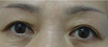 みらいビューティークリニック和歌山の目元整形・クマ治療の症例写真[アフター]