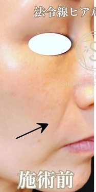 KOBE CLINIC 美容皮膚科・美容クリニックの顔のしわ・たるみの整形の症例写真[ビフォー]