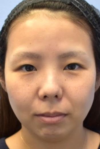 湘南美容クリニック新橋銀座口院の目・二重の整形の症例写真[ビフォー]