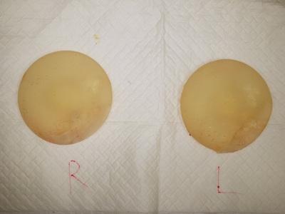 脂肪注入による豊胸術(175ccSBI抜去後200ml注入)の症例写真