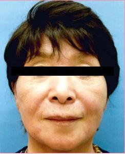 ■ベビーコラーゲン(口上)+ヒアルロン酸注入(ほうれい線)の症例写真[アフター]