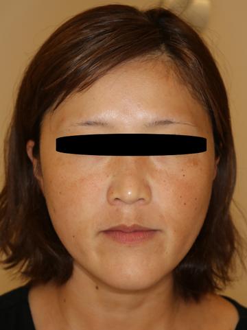 すなおクリニックの輪郭・顎の整形の症例写真[ビフォー]