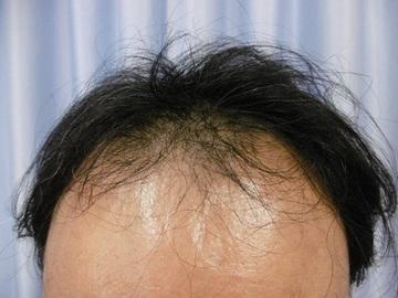 鹿児島三井中央クリニックの薄毛治療・AGA・発毛の症例写真[ビフォー]