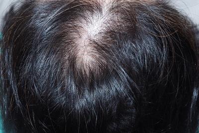 頭髪治療(薄毛、抜け毛治療)女性の症例写真[ビフォー]