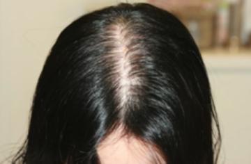 共立美容外科・歯科の薄毛治療・AGA・発毛の症例写真[ビフォー]