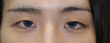大塚美容形成外科 京都院の目・二重整形の症例写真[ビフォー]