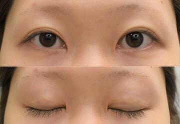 心斎橋コムロ美容外科クリニックの目・二重の整形の症例写真