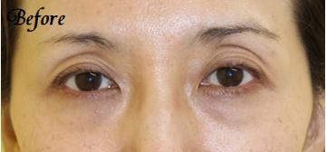 千葉中央美容形成クリニックの目元整形・クマ治療の症例写真[ビフォー]