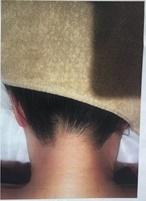 CHRISTINA clinic GINZA (クリスティーナクリニック銀座)の症例写真[アフター]