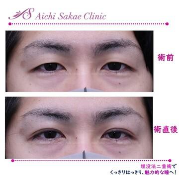 あいち栄クリニックの目・二重整形の症例写真