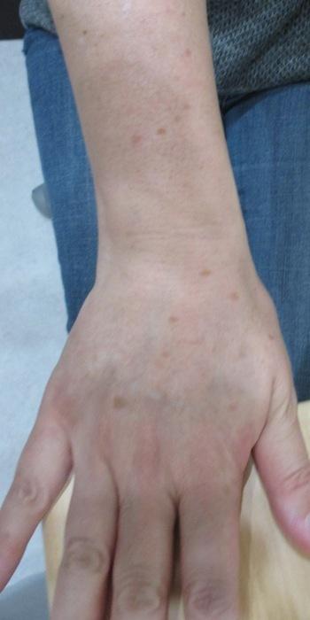 はなふさ美容皮膚科のシミ治療(シミ取り)・肝斑・毛穴治療の症例写真[ビフォー]