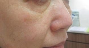エルクリニックのシミ治療(シミ取り)・肝斑・毛穴治療の症例写真[アフター]