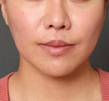 オザキクリニック LUXE新宿の鼻の整形の症例写真[アフター]