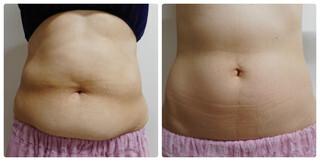 ながしまクリニックの痩身、メディカルダイエットの症例写真