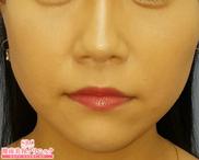 湘南美容クリニック赤羽院の顔のしわ・たるみの整形(リフトアップ手術)の症例写真[アフター]