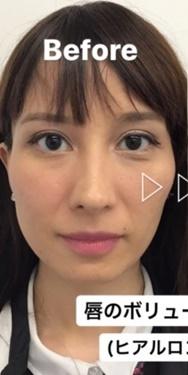 東郷美容形成外科福岡の口もと、唇の整形の症例写真[ビフォー]