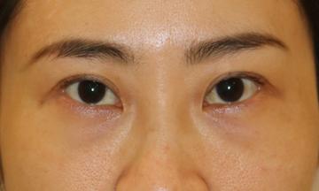 すなおクリニックの目元整形・クマ治療の症例写真[ビフォー]