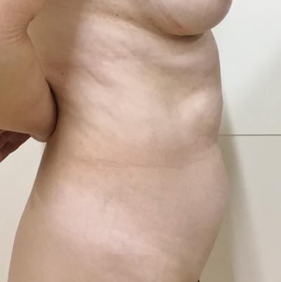 腹部・腰部の脂肪吸引の症例写真[ビフォー]