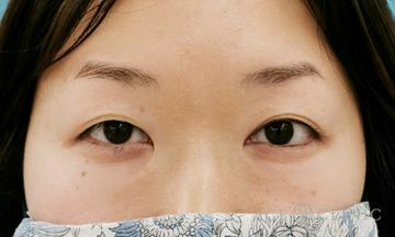 エースクリニック 名古屋院の目・二重整形の症例写真[ビフォー]