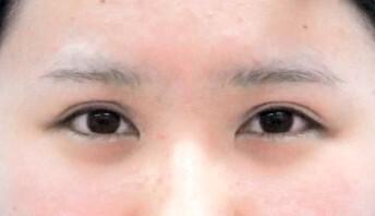 タレ目形成術  施術前&施術後の症例写真[ビフォー]