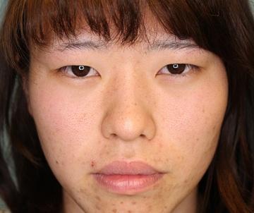 渋谷の森クリニックの目・二重の整形の症例写真[ビフォー]