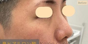 Kalon Clinic(カロンクリニック)の鼻の整形の症例写真[ビフォー]