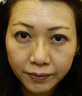 さやか美容クリニック・町田の鼻の整形の症例写真[ビフォー]