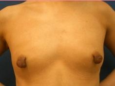 ■乳頭縮小術の症例写真[ビフォー]