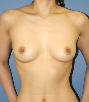 プリモ麻布十番クリニックの豊胸・胸の整形の症例写真[ビフォー]