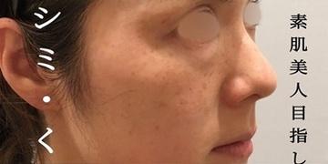 KOBE CLINIC 美容皮膚科・美容クリニックのシミ取り・肝斑・毛穴治療の症例写真[ビフォー]