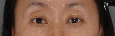 目の下のふくらみ取り パーフェクトの症例写真[アフター]