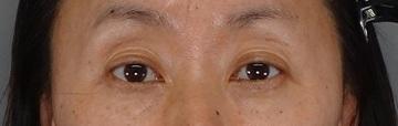 TCB東京中央美容外科の目元の整形、くま治療の症例写真[アフター]
